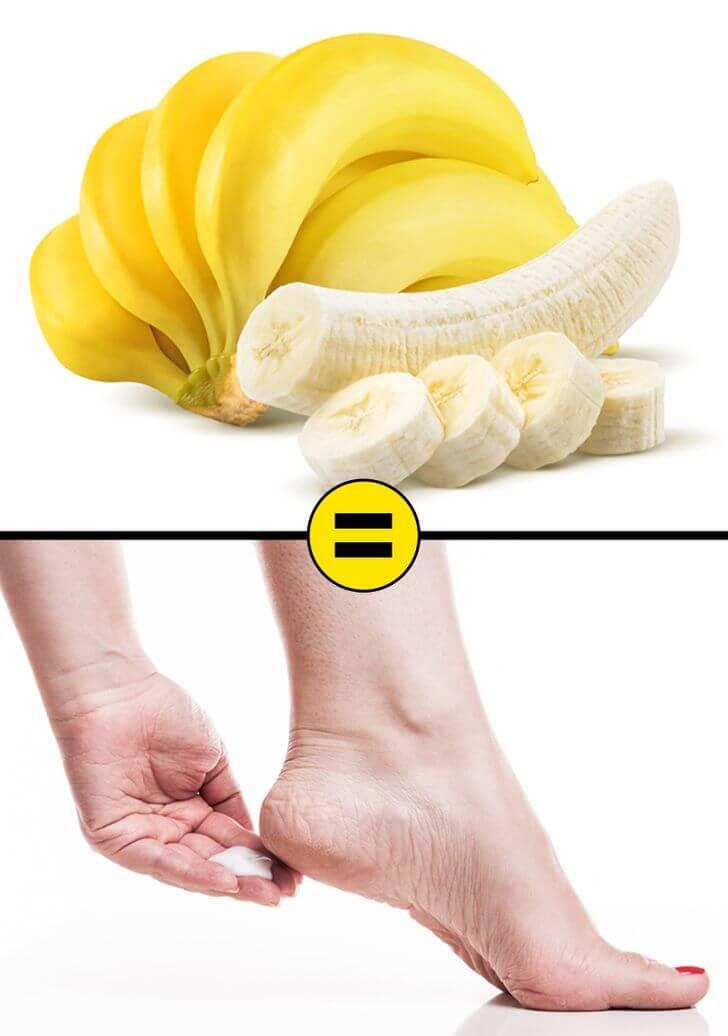 banana for cracked heels