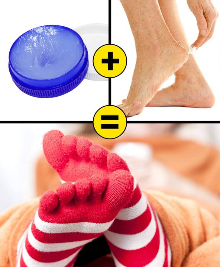 remedies for cracked foot