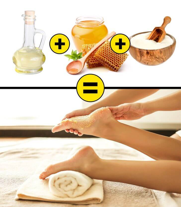 home remedies to heal cracked heels