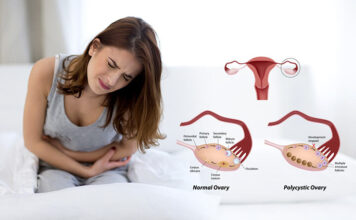 (PCOS) Polycystic ovary syndrome symptoms and causes