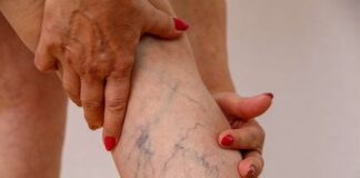 Varicose veins symptoms and Diagnosis